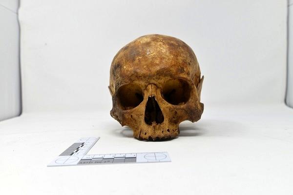 San Teobaldo - cranio-2